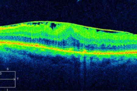 Epiretinal Membane (fine line on the top) causing the retina  to be thickened and pulled into folds.